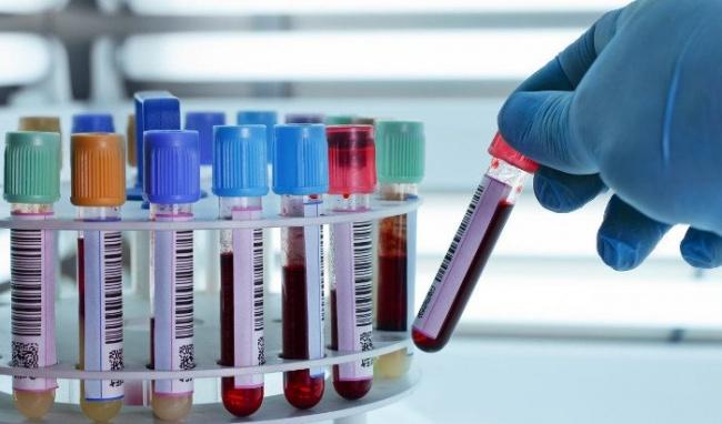 Tại sao nên đi kiểm tra và xét nghiệm nội tiết tố nữ?