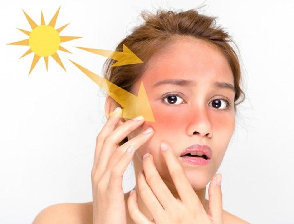 Uống gì để trị nám da mặt cực kỳ hiệu quả