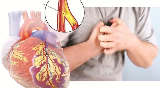 Bệnh tim mạch – Nguyên nhân, dấu hiệu và cách phòng ngừa hiệu quả