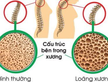loang-xuong-la-benh-gi-min