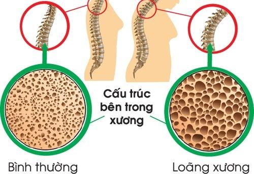Loãng xương là gì? nguyên nhân, dấu hiệu và cách điều trị