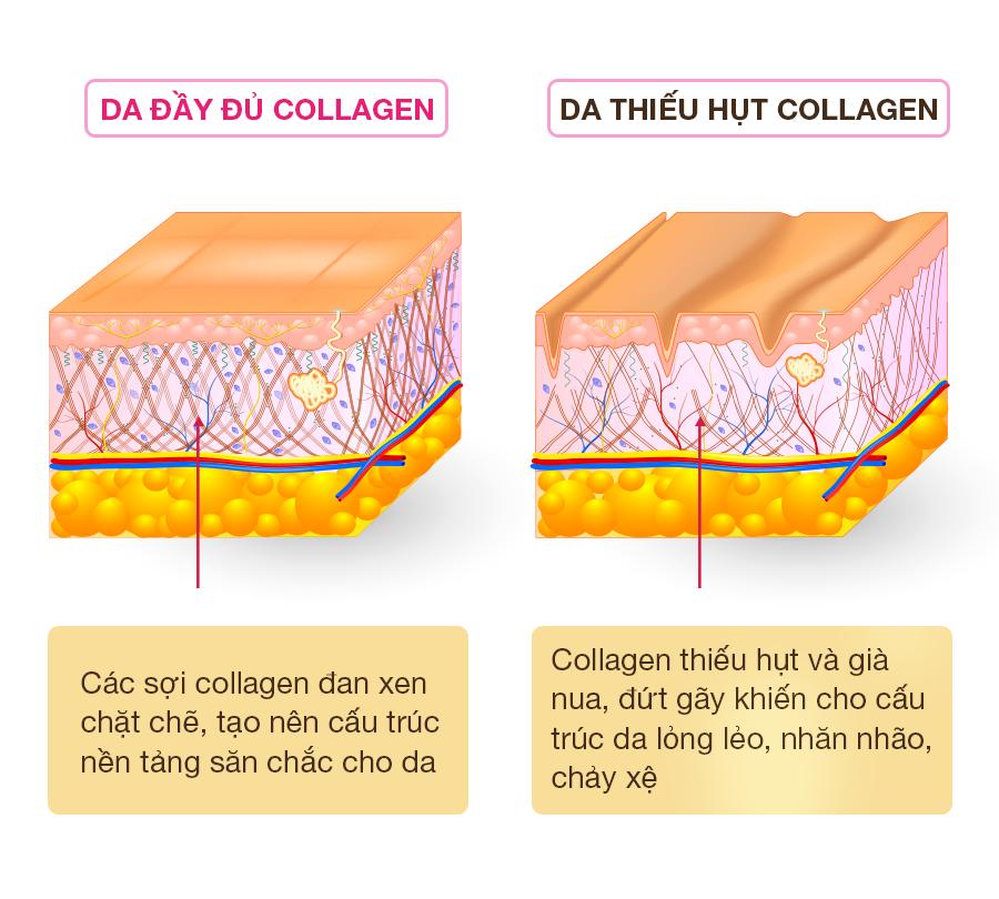 Collagen-tuoi-la-gi
