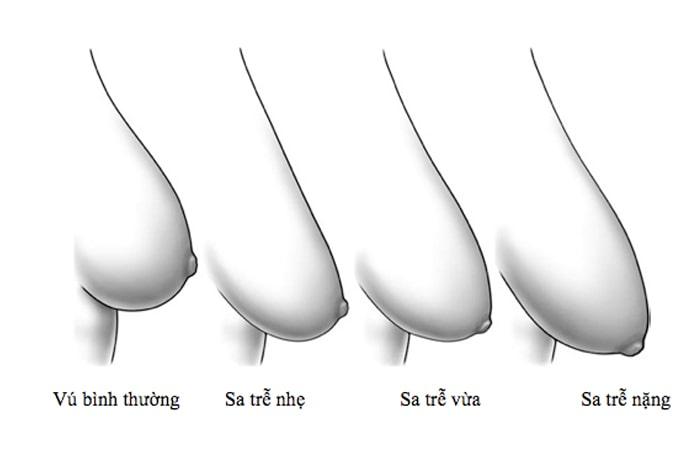 Ngực chảy xệ phải làm sao – 7 cách làm săn chắc vòng 1 sau sinh