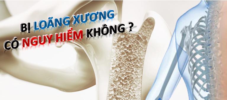 Bệnh loãng xương có nguy hiểm không? có chữa được không?